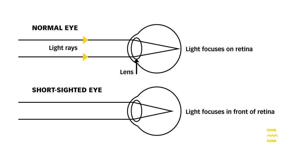 Short Sightedness Diagram 1 Pulse