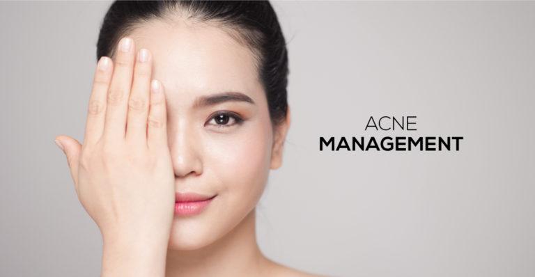 Acne Management Singapore